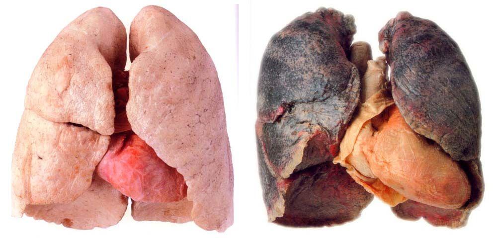 Problemas com fechaduras em fumagem deixada